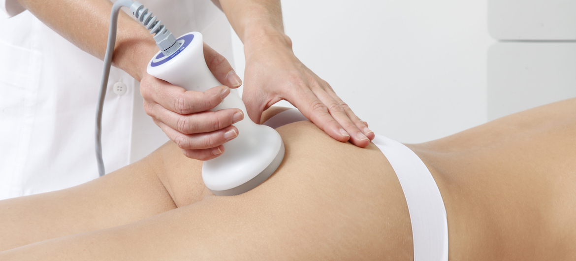 servicio de radioterapia en perfect ten