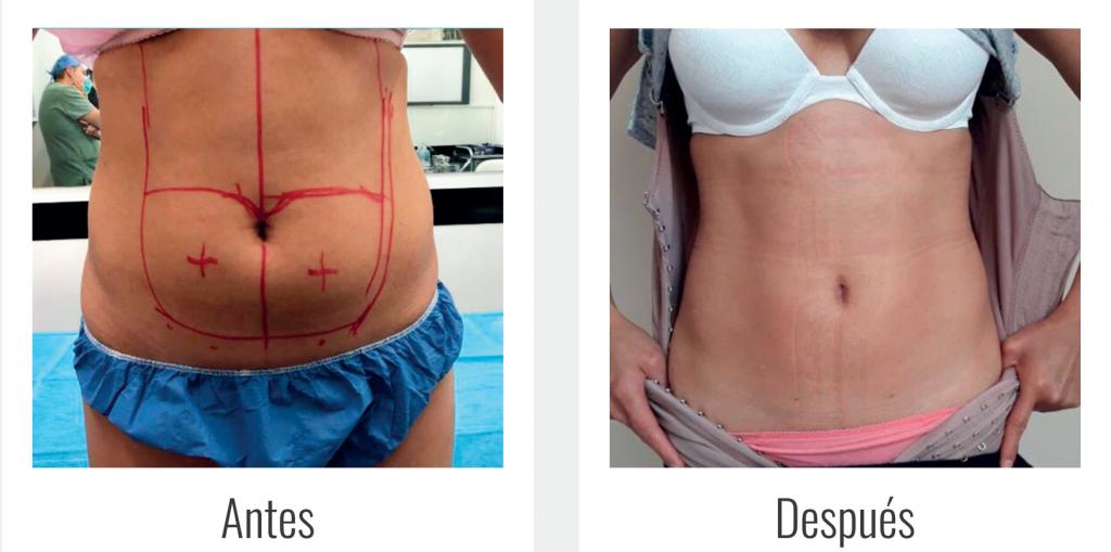 Elimina la grasa localizada en Perfect 10